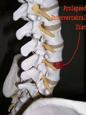 Model of Spine showing Prolapsed Disk